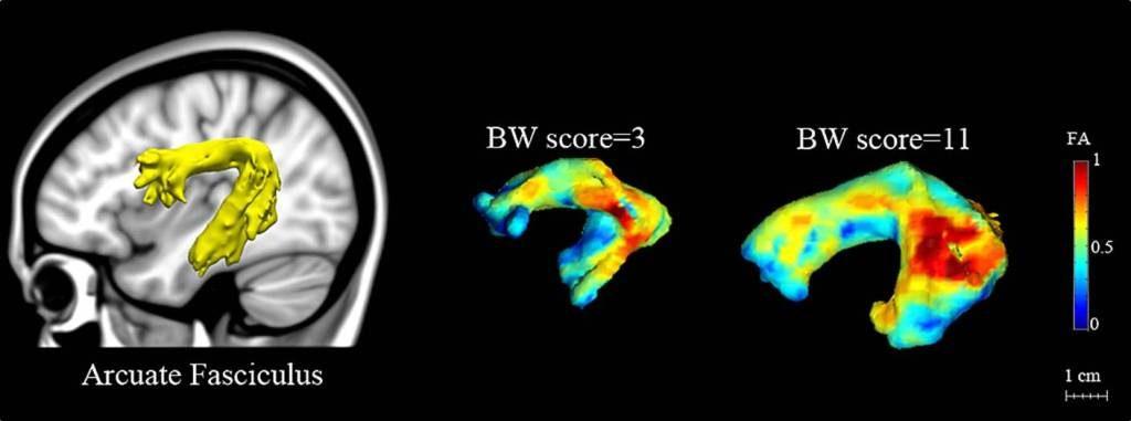 Splot połączeń nerwowych Acurate fasciculus rezonans magnetyczny diagnozowanie dysleksji problemy znauką czytania